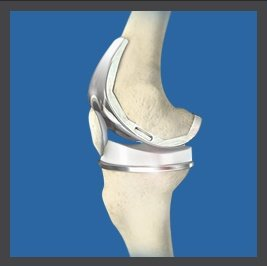 Cementless Total Knee Arthroplasty